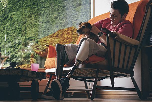 Man met beenprotese zit op de bank thuis met zijn hond